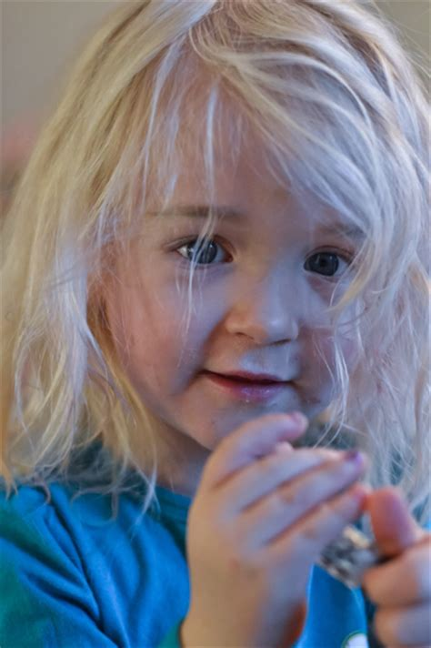 White or Grey Hair in Children: Causes & Managements