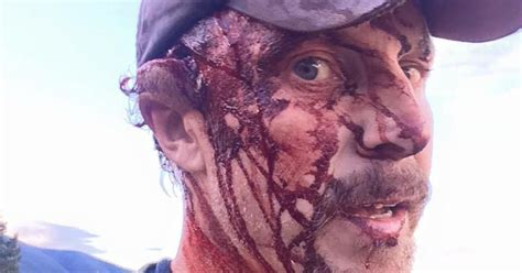 Grizzly bear attacks Todd Orr in Montana twice and he